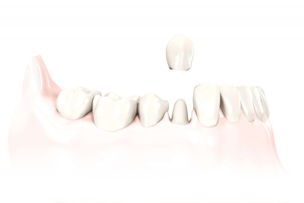 Dental Crown Process Leawood, KS