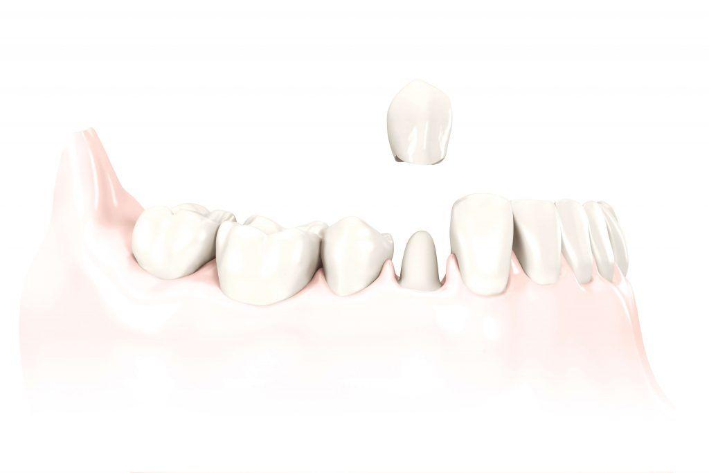 Dental Crown Process Leawood, KS