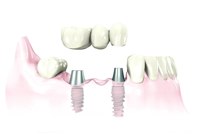 replace a few teeth with dental implants Leawood, KS