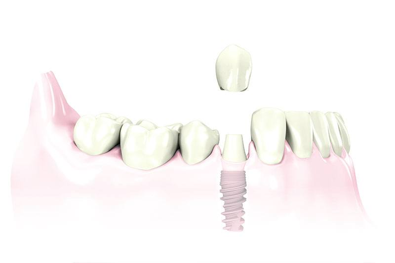 replace one tooth with dental implant Leawood, KS