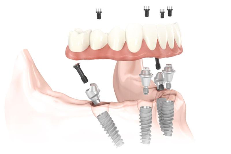 replace a full arch with dental implants Leawood, KS