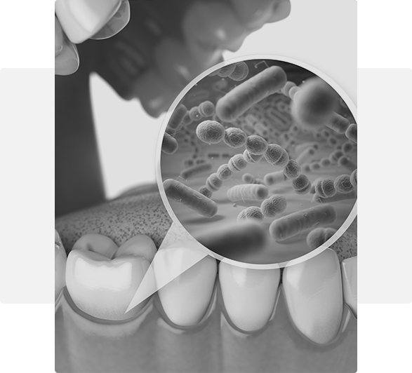 bacteria in the mouth gum disease Leawood, KS