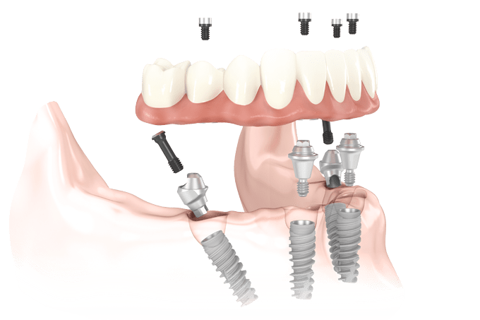 All-on-4 dental implants Leawood, KS