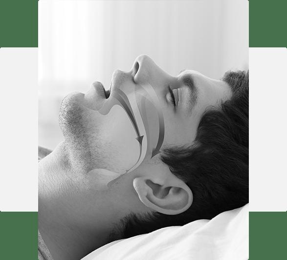 man in need of sleep apnea treatment Leawood, KS