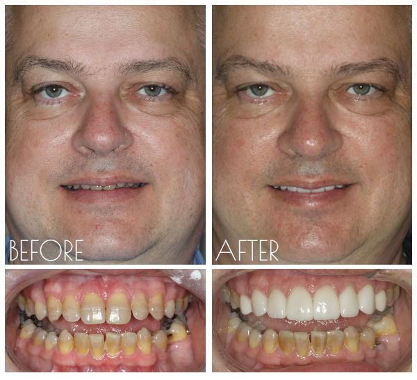 Gordon dental cosmetic before and after Leawood, KS