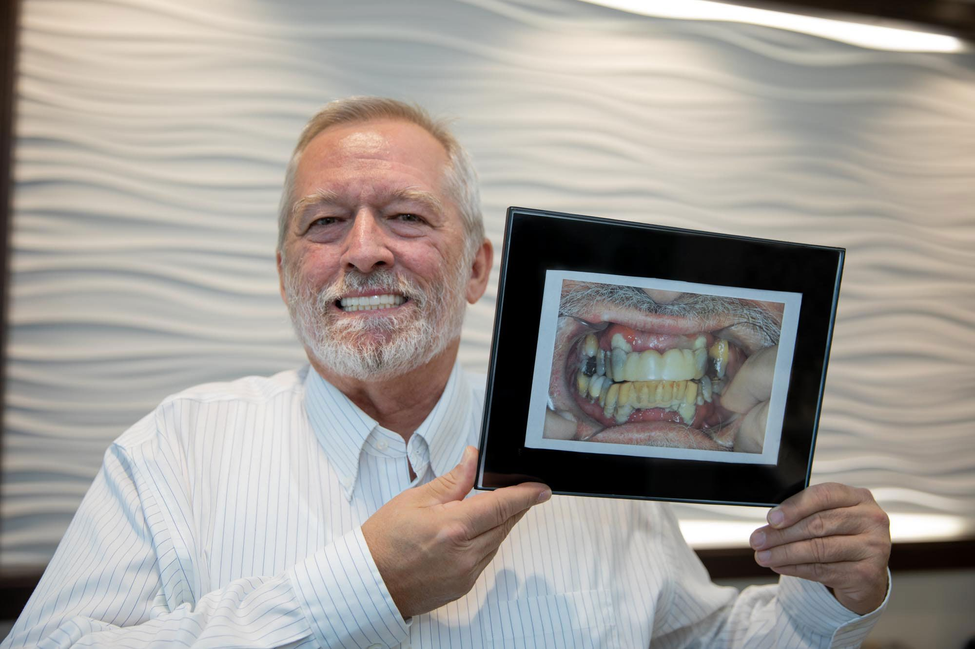 Receive Your Permanent Teeth leawood ks
