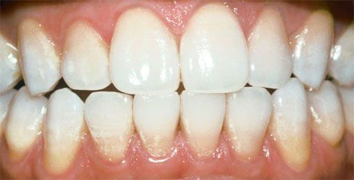 Zoom Whitening after Leawood, KS