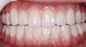after full arch dental implants placement