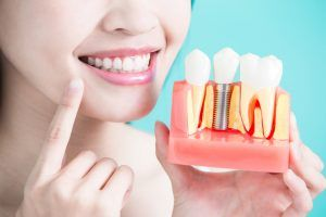 Regaining Your Confidence with Dental Implants