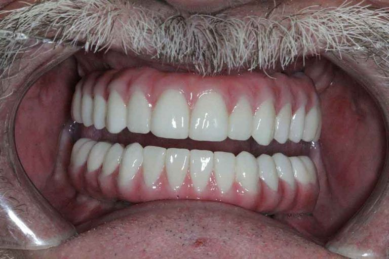 After Full Arch Dental Implants