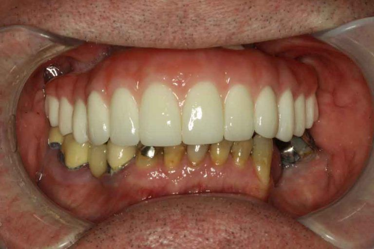 After Upper Arch Implants