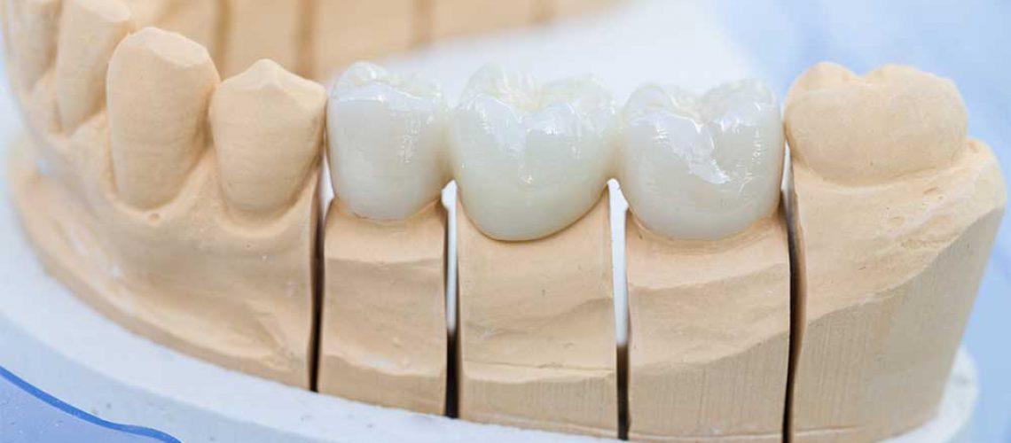 dental-bridge-vs-dental-implant-restoration