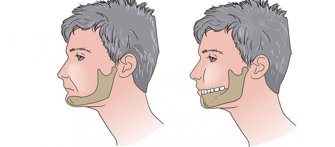 jawbone-loss-atrophy-implants