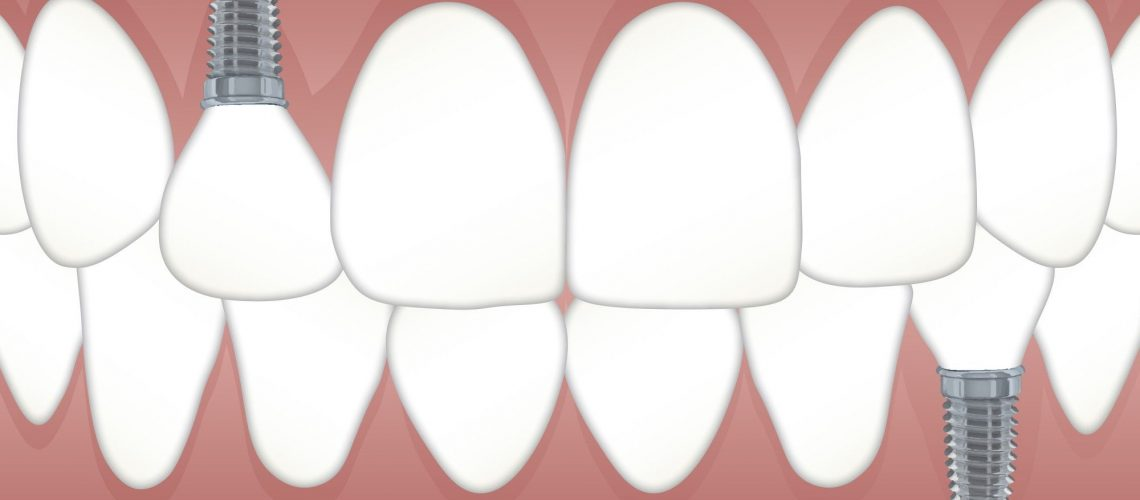 teeth-replacement-options